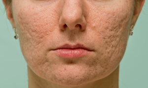 acne-littekens-gezicht-ii