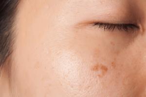 pigmentvlek-gezicht