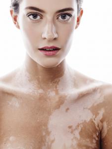 vitiligo-camouflage-pagine