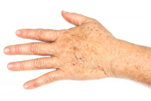 pigment-vlekken-handen